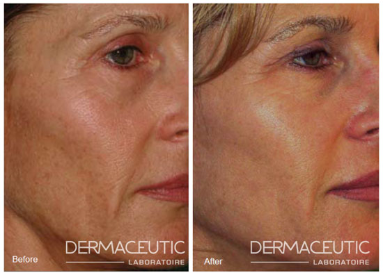 dermaceutic-cosmo-peel-before-after