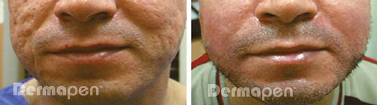 before after acne scarring